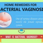 Tips for You to Deal with Bacterial Vaginosis at Home