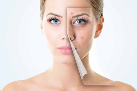 Effective Ways to Treat the Acne Scarring