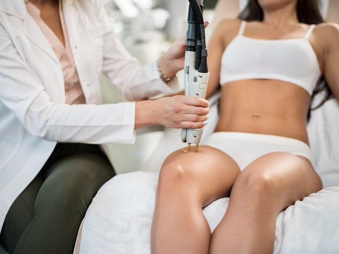 Best Laser Hair Removal Technologies