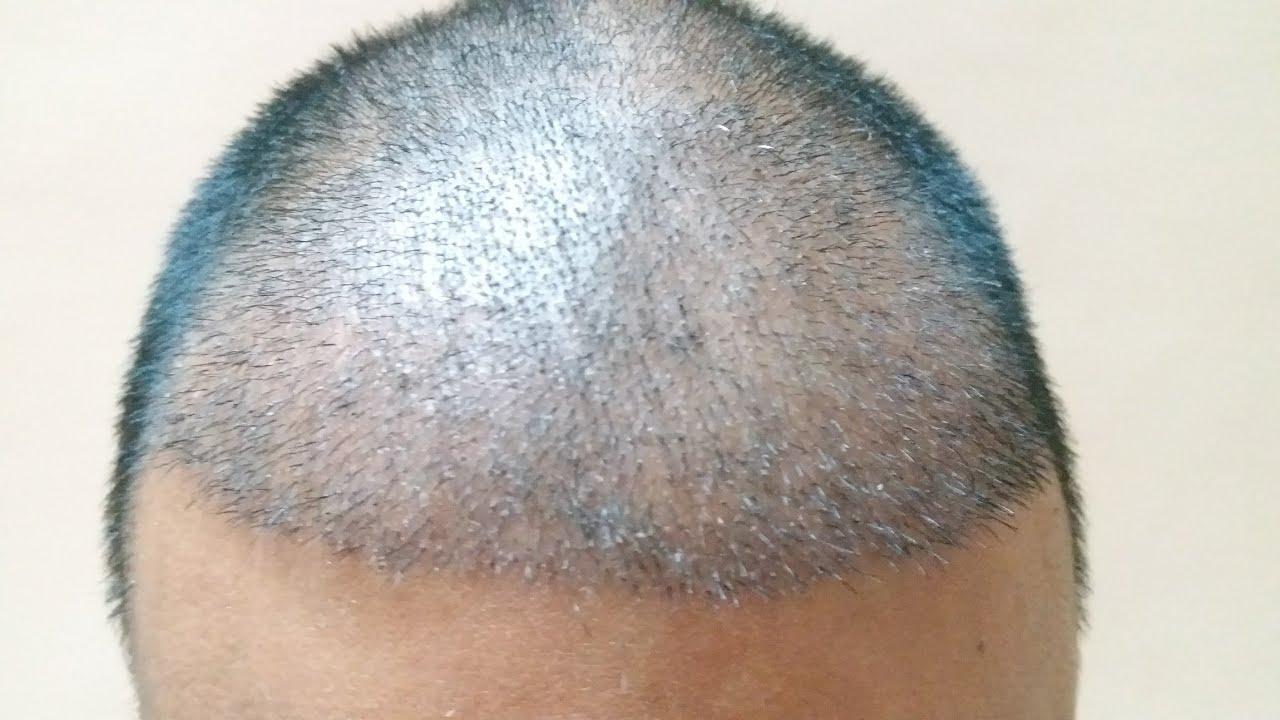 Hair Transplant tips