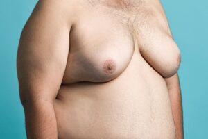 The Psychological Effects of Gynecomastia on Teens