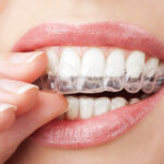 5 Interesting Things to Know About Clear Aligners and Their Cost